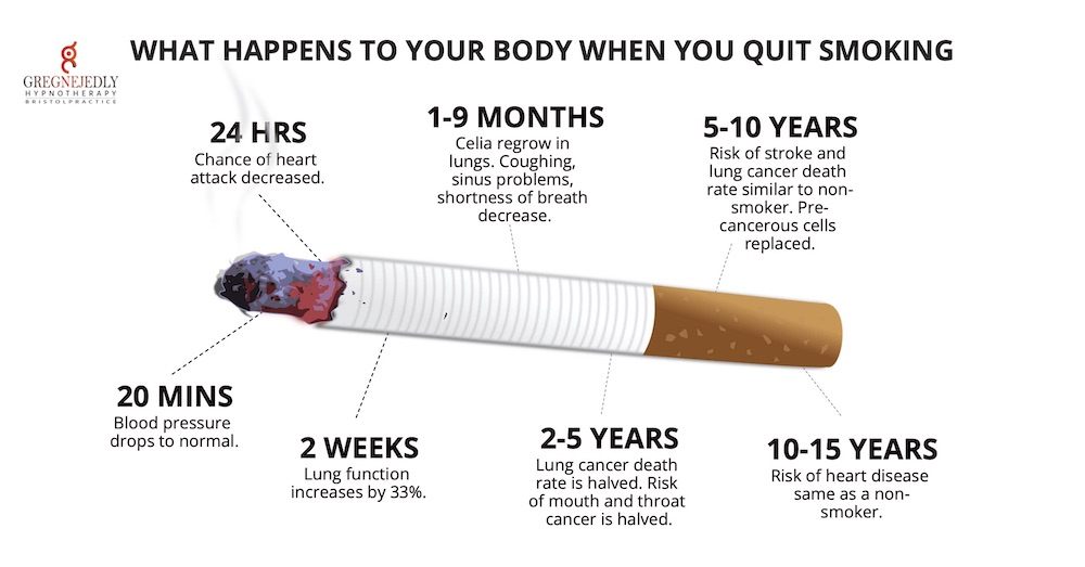 Bristol stop smoking hypnotherapy service infographic.
